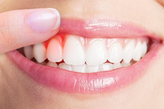 سلامتی دندان و زیبایی چهره