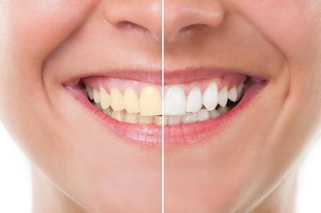 تاثیر قهوه بر روی دندان