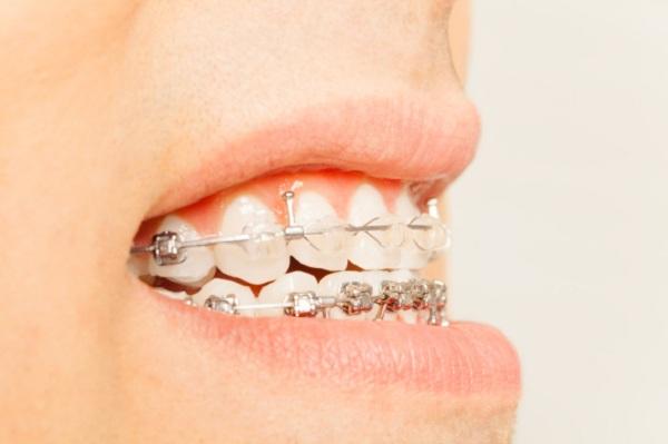 درمان دندان های نامرتب