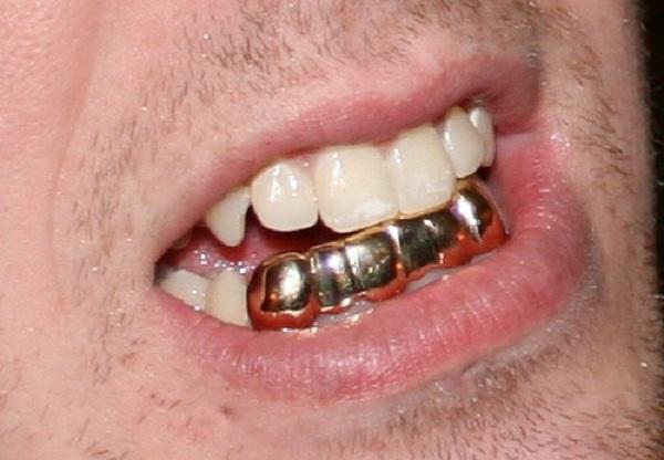 نگین دندان و روکش طلا