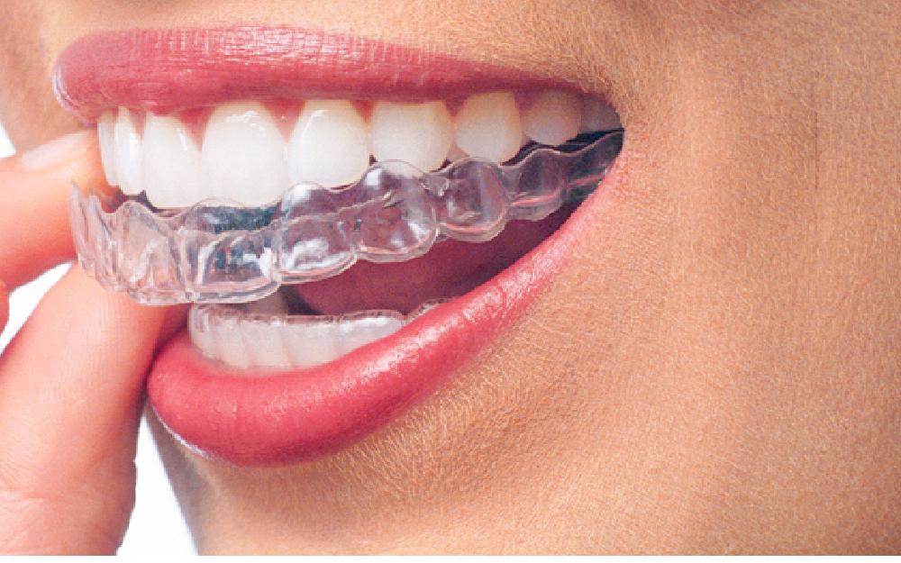 دندان های نامرتب