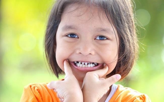 تشخیص شکستگی دندان کودکان