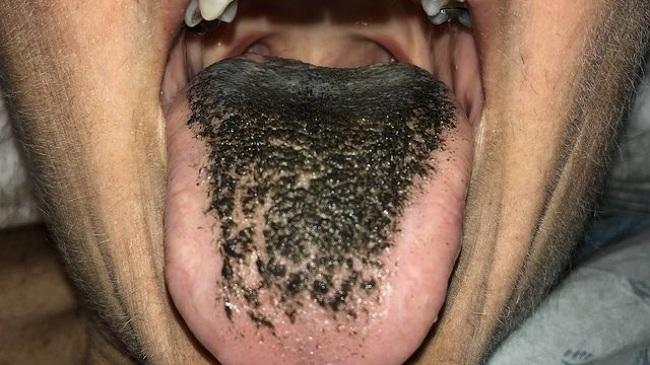 سیاه شدن رنگ زبان