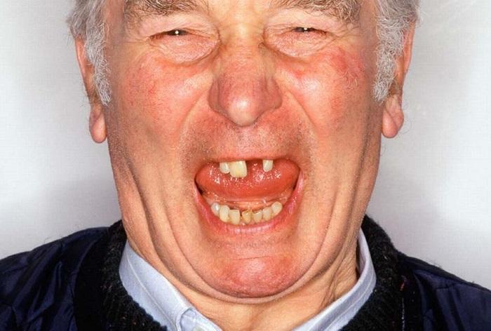 مراقبت از دهان و دندان در پیری