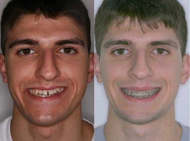 نامرتبی دندان ها