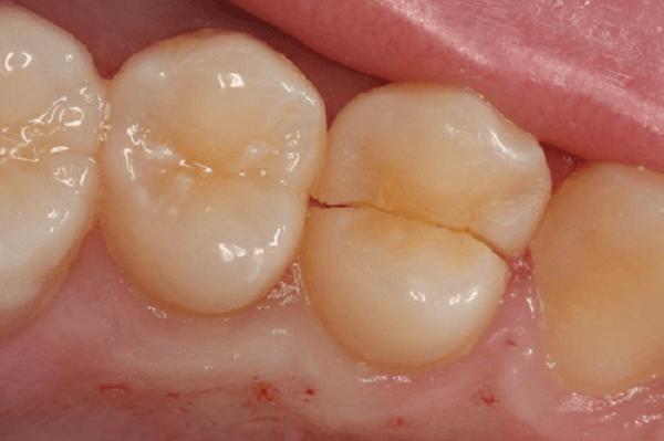 شکستن دندان پس از عصب کشی
