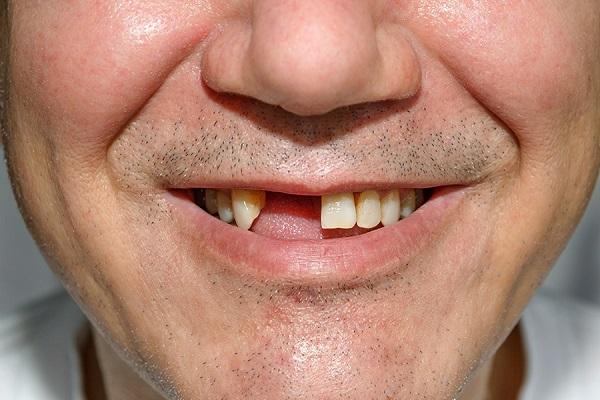 تاثیر افتادن دندان در سنین بالا