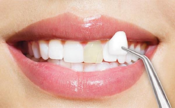 دوام روکش دندان